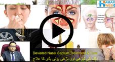 ناک کی ٹیڑھی اور بڑھی ہوئی ہڈی کا علاج