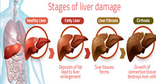 6 Early Signs Your Liver Is Damaged