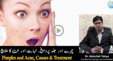 چہرے اور جلد پر داغ مہاسے اور ان کا علاج